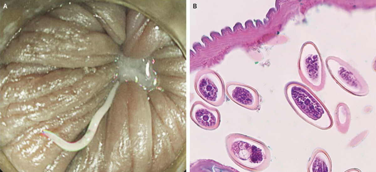 enterobius vermicularis article)