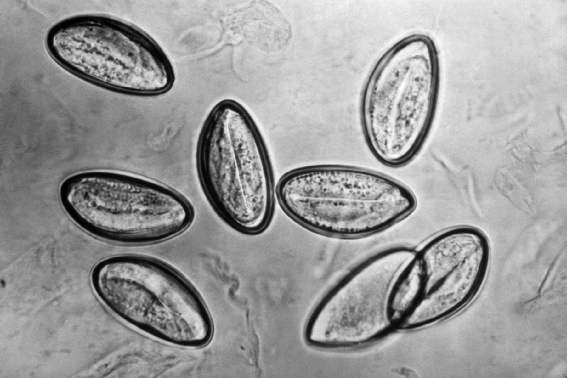 enterobius vermicularis location in the body