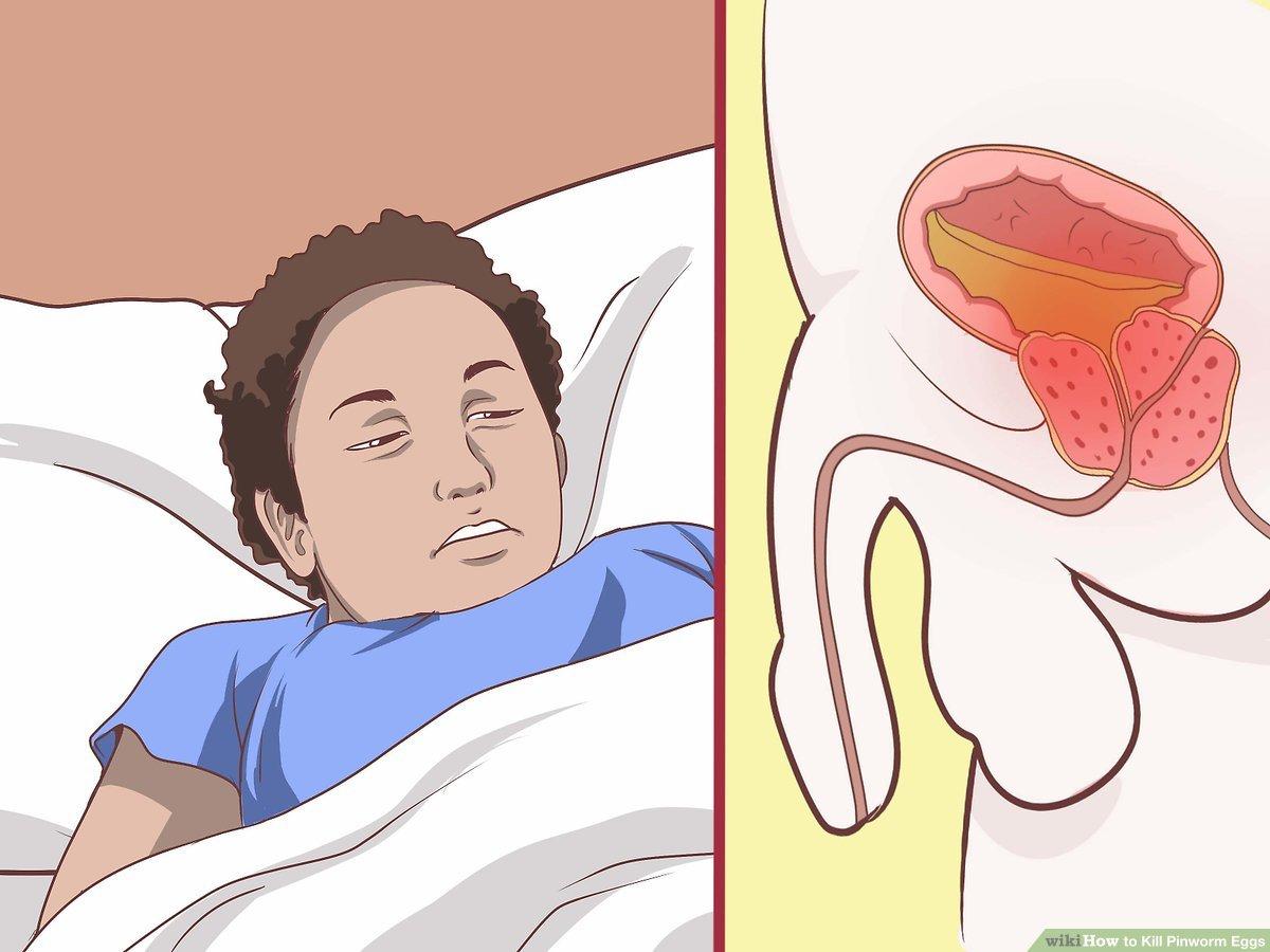 enterobius vermicularis treatment nhs
