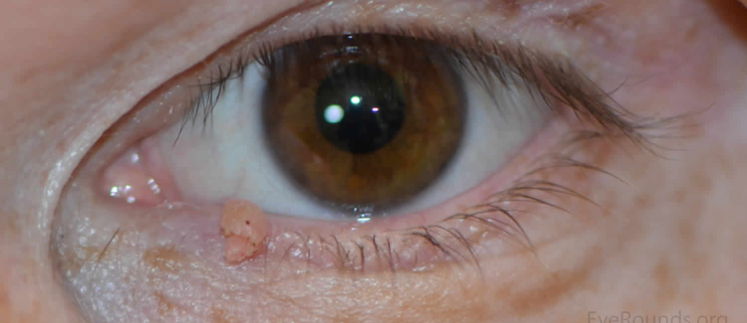 eye papilloma symptoms)