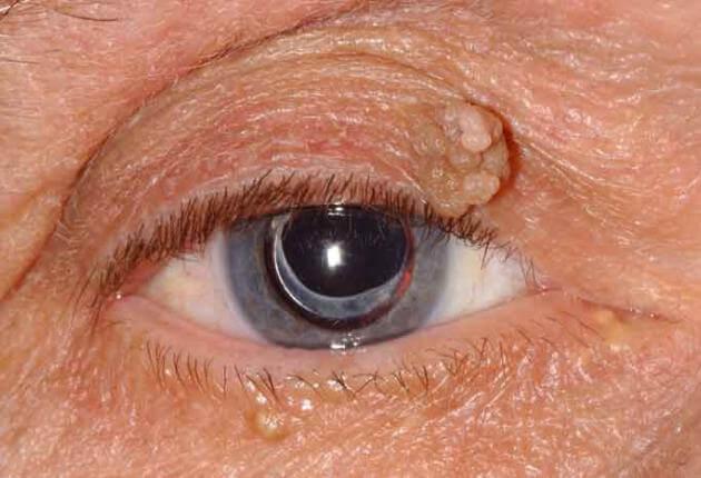 eyelid skin papilloma)