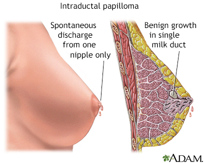 what causes papilloma in the breast)