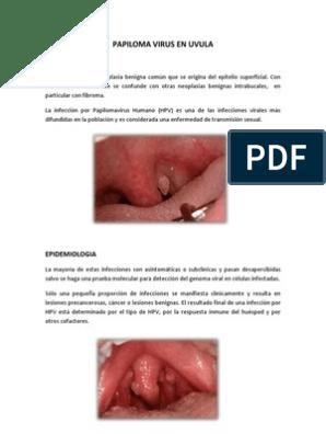 papiloma para-uvular)