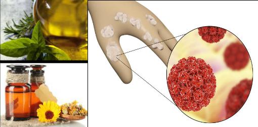 home remedy for papilloma virus