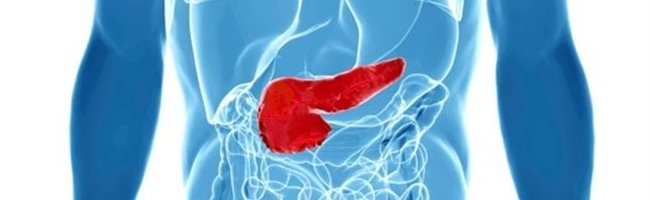 cancer de pancreas bilirrubina alta