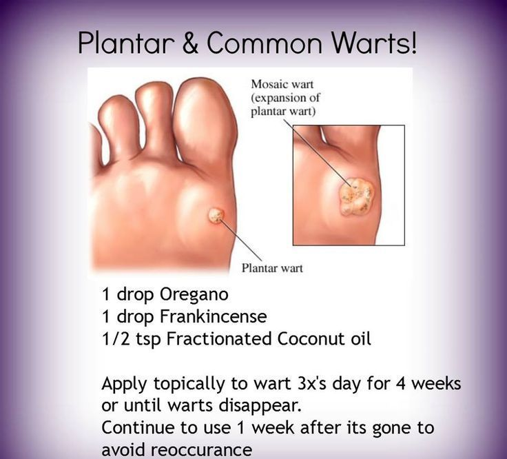 wart treatment young living hpv wart burst