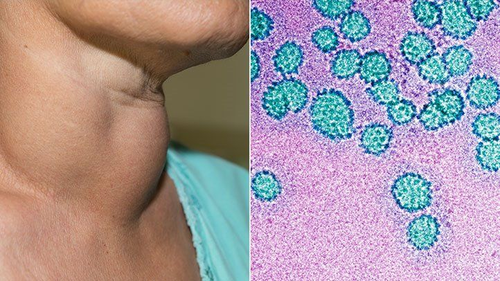 hpv virus sexually transmitted