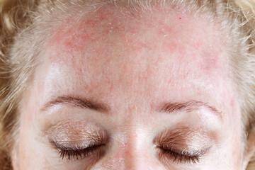 Dermatita seboreica – ce este si cum o tratam