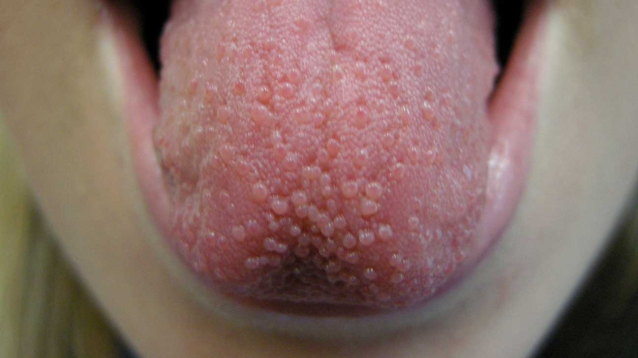tongue papillae pain)