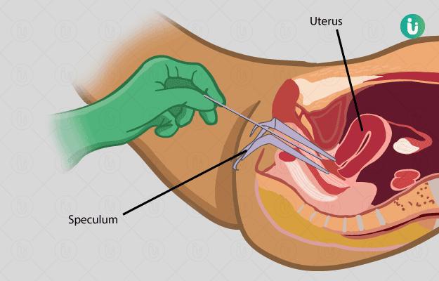 consequence du papillomavirus chez lhomme infecție echinococoza