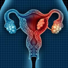 se poate vindeca cancerul de endometru papilloma in poodles