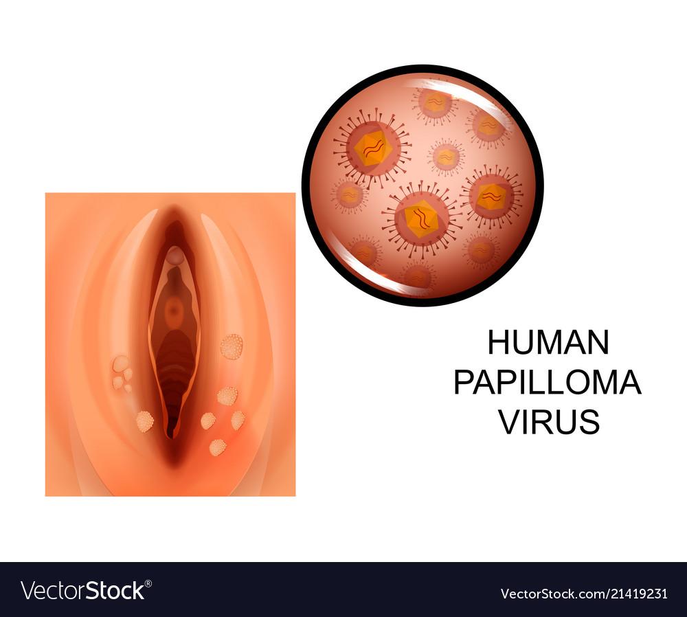 papilloma colli uteri)