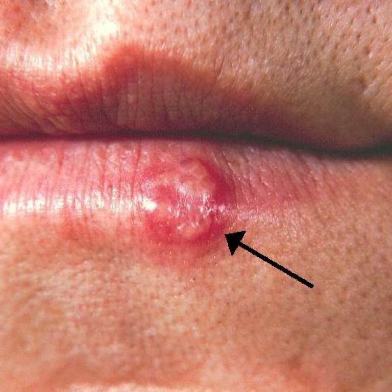 herpes hsv-1