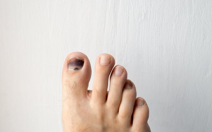 cancer unghie picior)