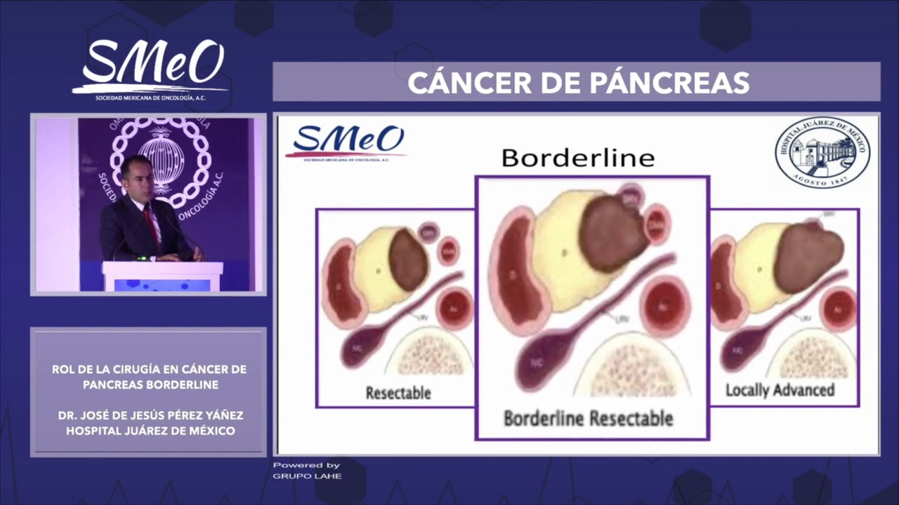 cancer de pancreas borderline)