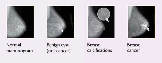 cancer found benign