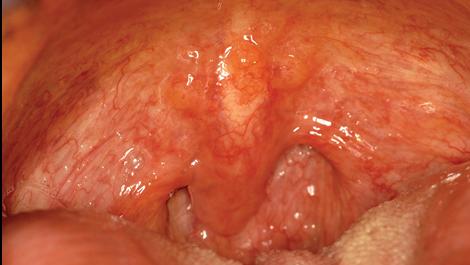 papillary lesion on uvula)