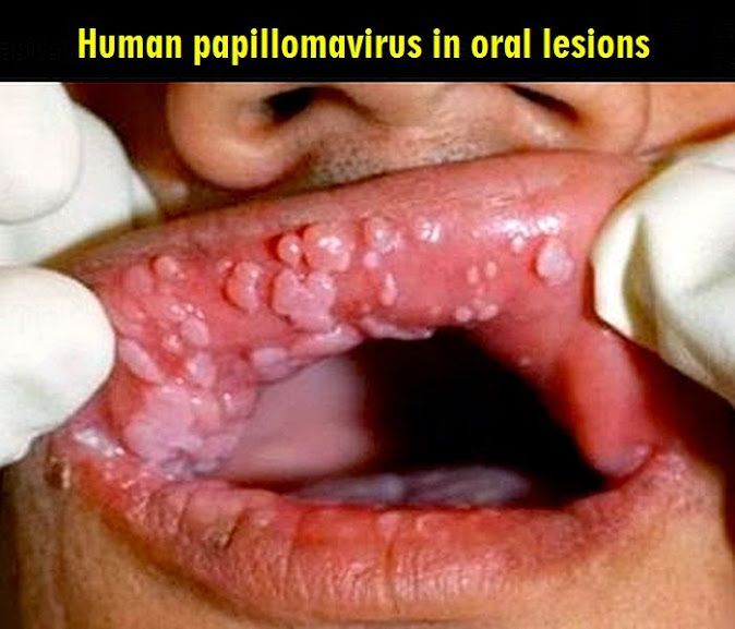 hpv mouth images)