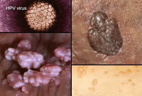hpv warts vs herpes)