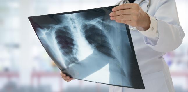 cancerul pulmonar este contagios