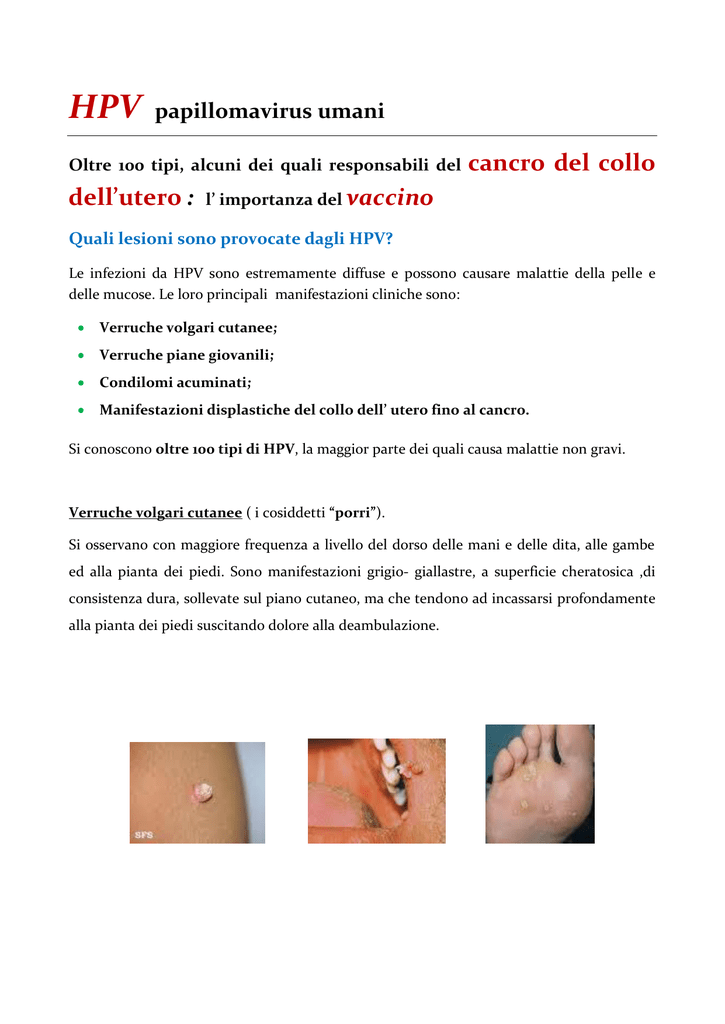 infecție echinococoza)