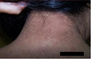 que es papilomatosis reticulada y confluente