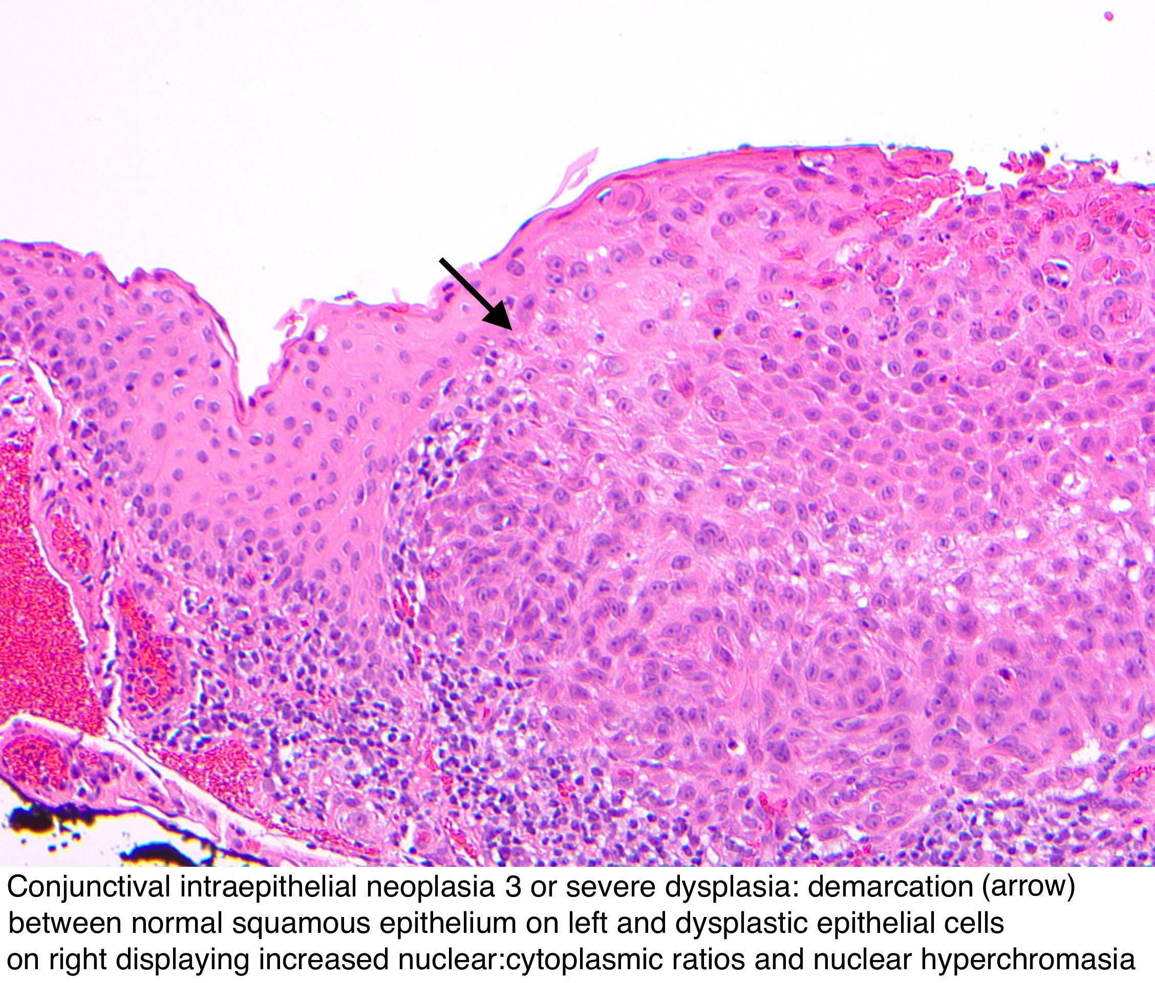 conjunctival squamous papilloma histopathology)