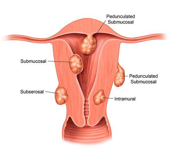 Uterine Fibroids – Medical Treatment