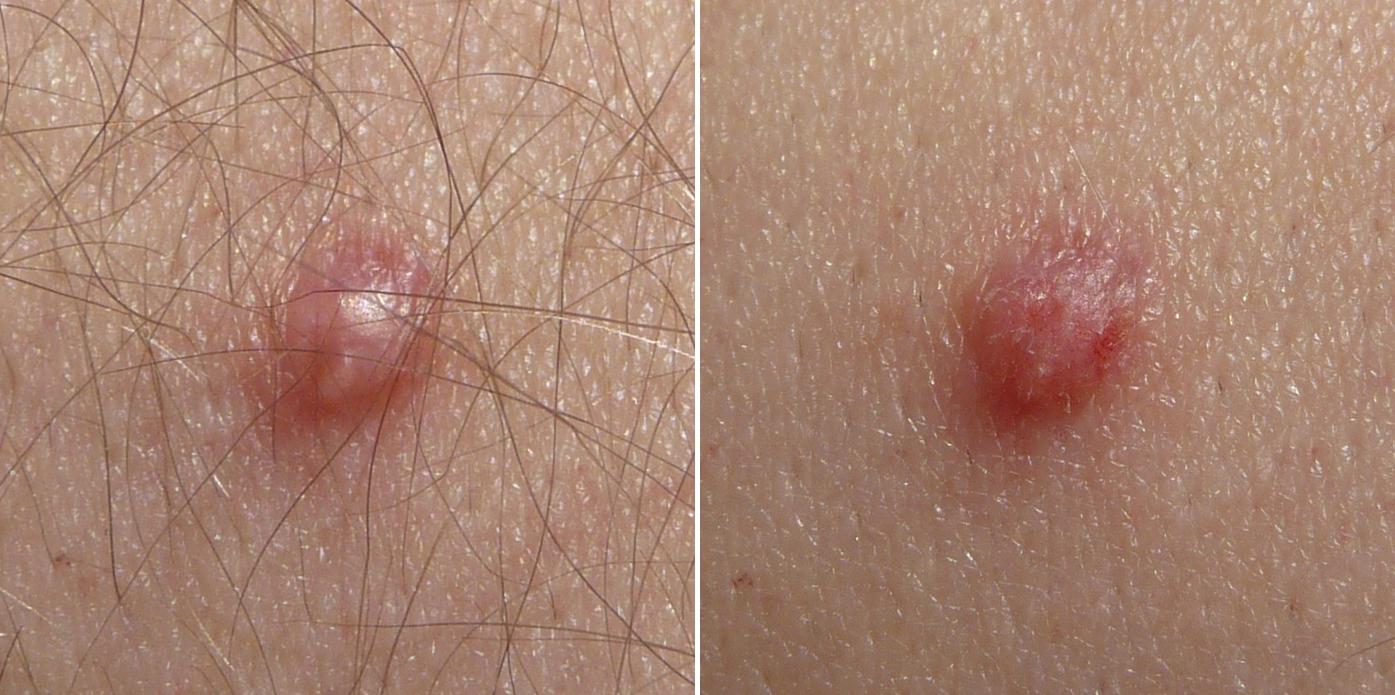 papilloma della pelle