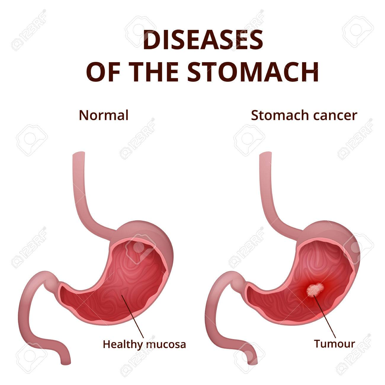 gastric cancer no symptoms