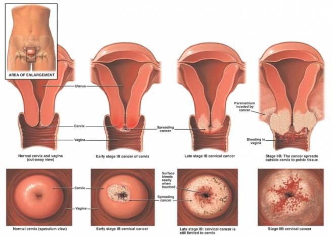 cervical cancer or polyp)
