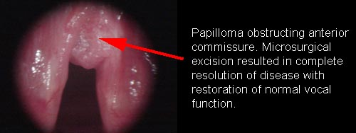 removal of laryngeal papilloma)