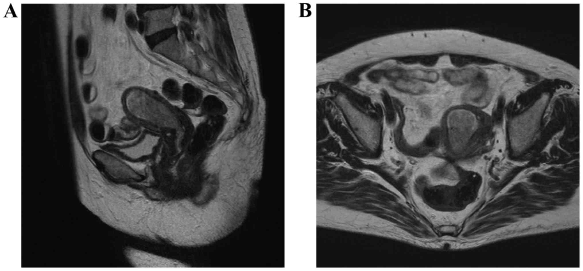 endometrial cancer on mri)