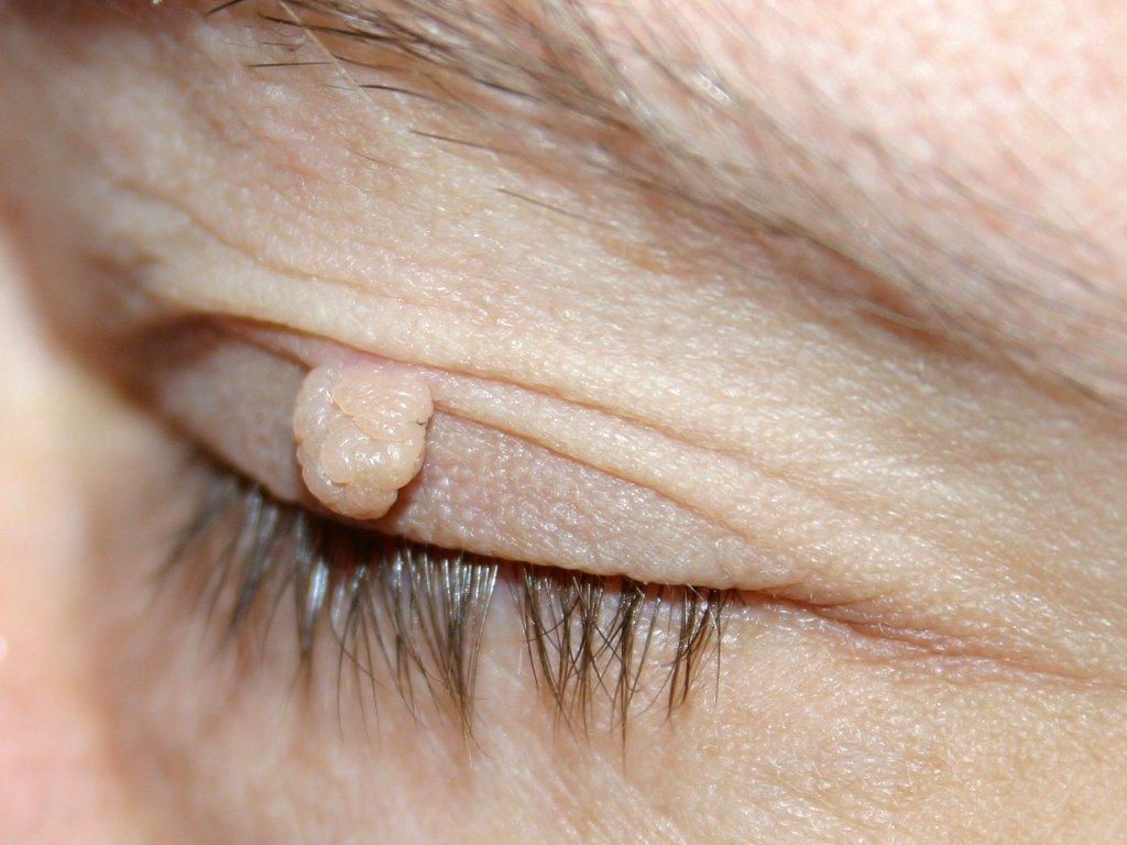 fibroma vagy papilloma