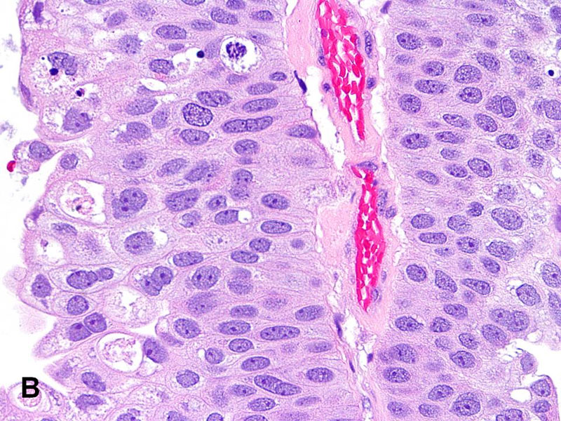 sclerosing intraductal papilloma breast cancer cervical lymph node