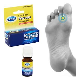 foot verruca natural treatment