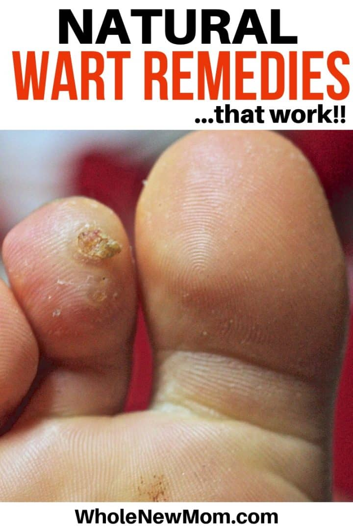 foot wart essential oil