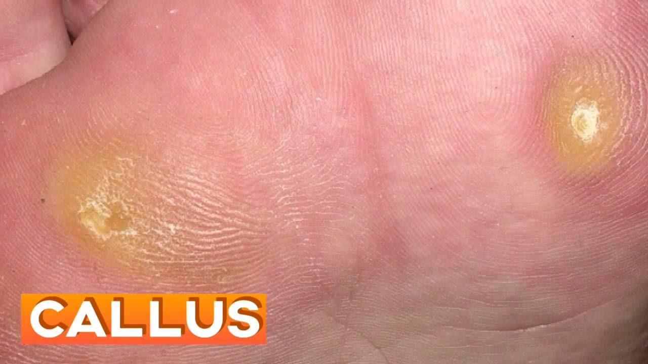 foot wart versus corn diarre v 37