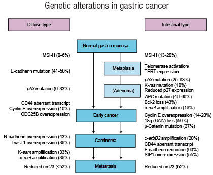 gastric cancer of progression