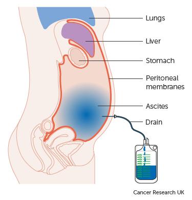gastric cancer peritoneal fluid