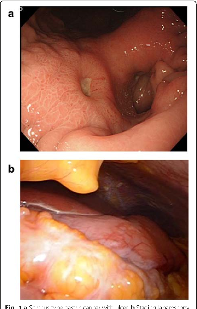 gastric cancer with peritoneal carcinomatosis)
