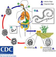 helminth infections and diseases cancer dor abdominal