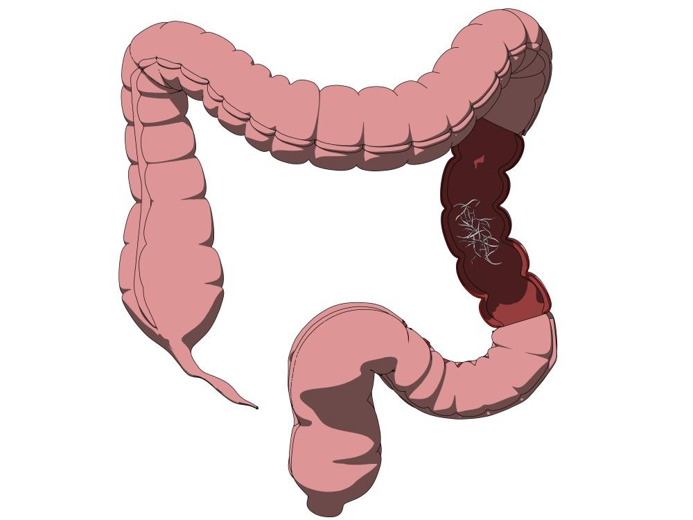 helminti simptome la adulti dysbiosis nhs