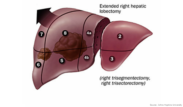hepatic cancer resection