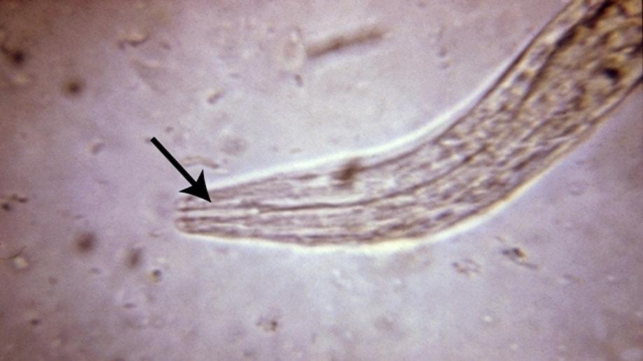 hookworm autoimmune therapy)