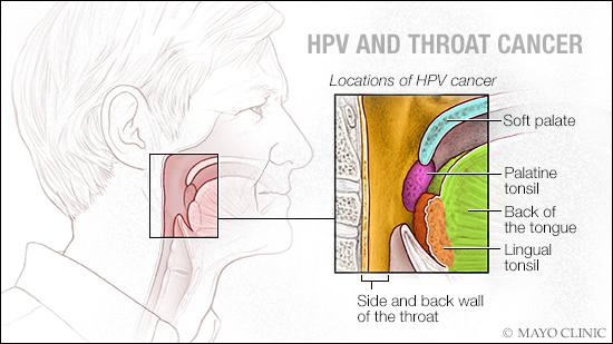 hpv and male throat cancer)