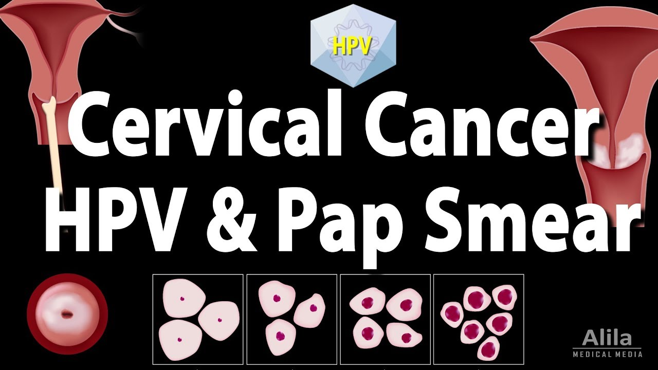 hpv cervical cancer removal