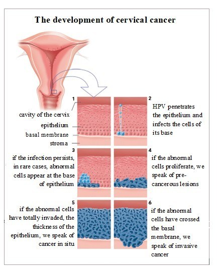 hpv cervical cancer vs genital warts helmin?ilor
