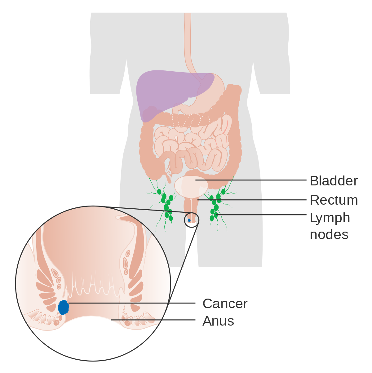ovarian cancer vs fibroids