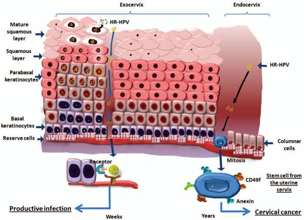 papilomavirus uman